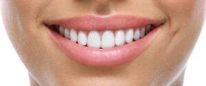 albire dentara Brasov